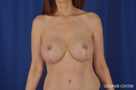 Complex Breast Augmentation: Patient 37 - After Image 1