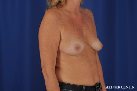 Breast Augmentation: Patient 165 - Before Image 2