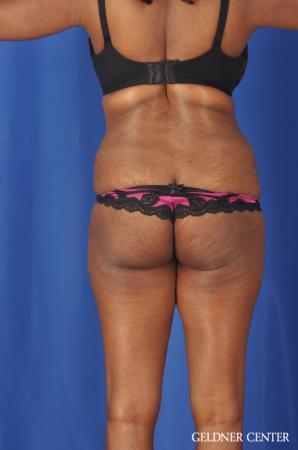 Liposuction: Patient 40 - Before Image 4