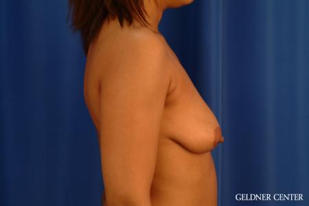 Breast Lift: Patient 54 - Before Image 3
