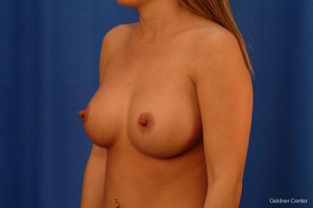 Chicago Breast Augmentation 2526 -  After Image 3