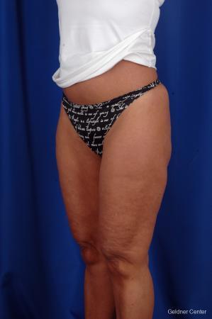 Liposuction: Patient 7 - After Image 5