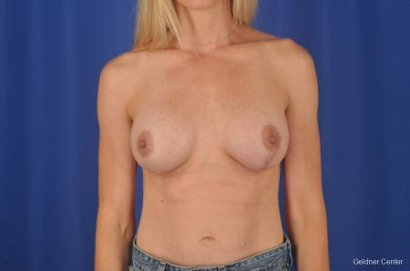 Chicago Breast Augmentation 6653 -  After Image 1