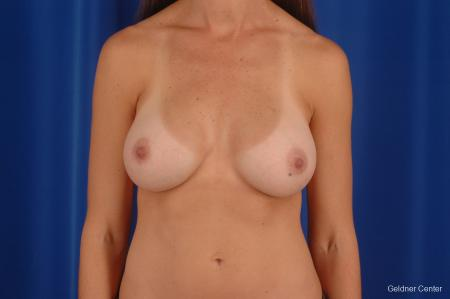 Chicago Breast Augmentation 2294 -  After Image 1
