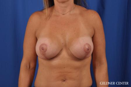 Breast Lift: Patient 42 - After Image 1