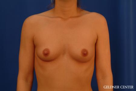 Breast Augmentation: Patient 181 - Before Image 1