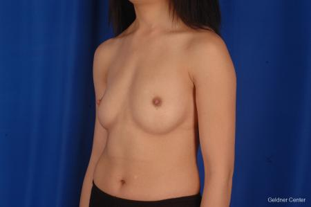 Chicago Breast Augmentation 2339 - Before Image 4