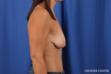 Breast Lift: Patient 42 - Before Image 2
