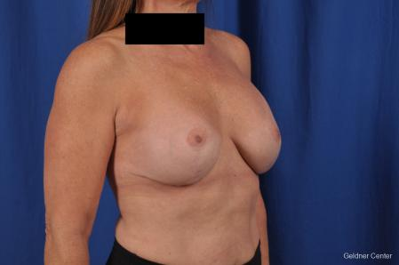 Breast Augmentation: Patient 153 - After Image 3