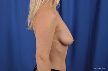 Breast Lift: Patient 19 - Before Image 2