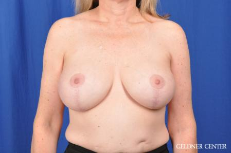 Breast Lift: Patient 51 - After Image 1