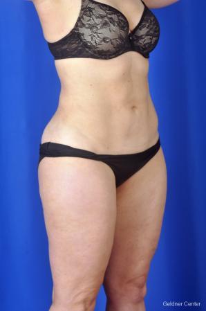 Liposuction: Patient 2 - After Image 2