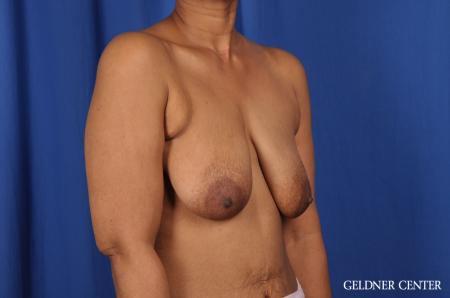 Breast Lift: Patient 38 - Before Image 3