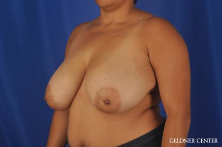 Breast Reduction Lake Shore Dr, Chicago 9099 - Before and After Image 4