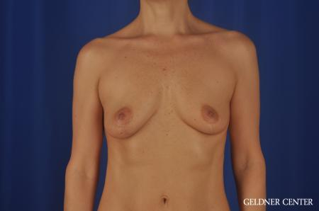 Breast Lift Lake Shore Dr, Chicago 6649 -  After Image 1