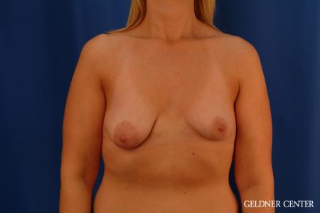 Breast Lift: Patient 50 - Before Image 1