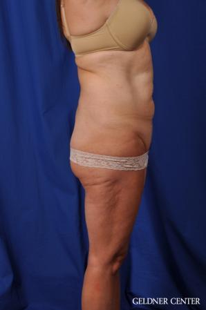 Liposuction: Patient 43 - Before 3