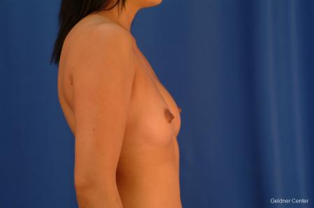 Underarm Breast Augmentation Streeterville, Chicago 2621 - Before Image 2
