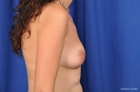 Chicago Breast Augmentation 2053 - Before Image 2