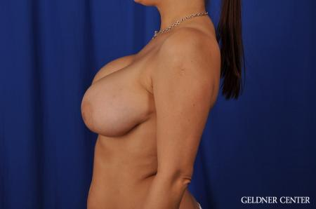 Chicago Breast Augmentation 5541 - Before and After Image 5