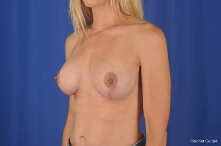 Chicago Breast Augmentation 6653 -  After Image 4