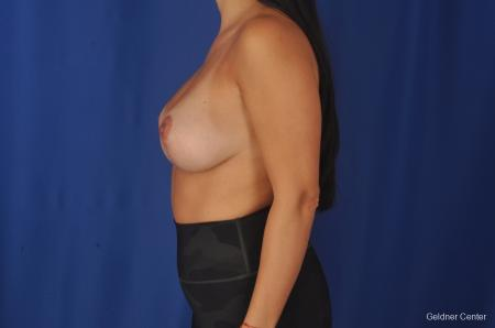 Breast Augmentation: Patient 78 - After Image 4
