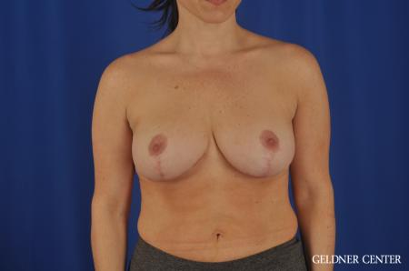 Breast Reduction Hinsdale, 4287 -  After Image 1