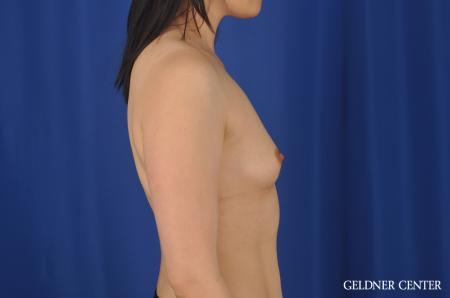 Breast Augmentation Hinsdale, Chicago 8751 - Before Image 2