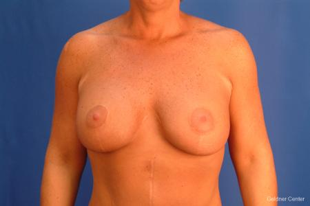 Chicago Breast Augmentation 2524 -  After Image 1