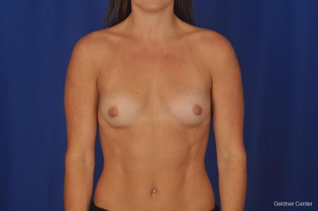 Chicago Breast Augmentation 2393 - Before Image 1