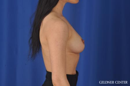 Breast Augmentation: Patient 145 - Before Image 2