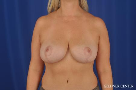 Breast Lift Streeterville, Chicago 8754 -  After 1