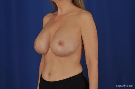 Breast Augmentation Streeterville, Chicago 2388 -  After Image 4