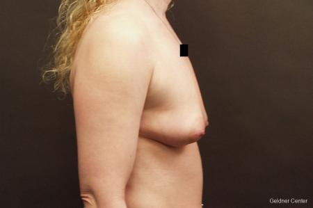 Breast Augmentation Lake Shore Dr, Chicago 2436 - Before Image 2