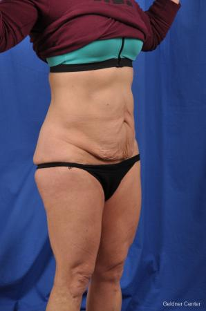 Abdominoplasty: Patient 7 - Before Image 2
