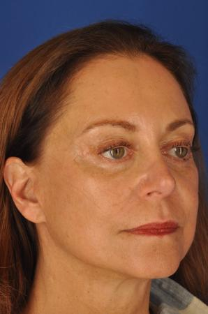 Facelift: Patient 7 - After Image 3