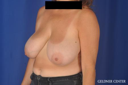 Breast Reduction: Patient 13 - Before and After 4