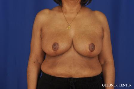 Breast Reduction: Patient 35 - After Image 1