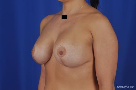 Chicago Breast Lift 2059 -  After Image 4
