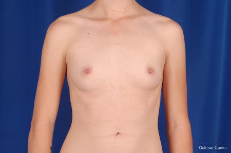 Chicago Breast Augmentation 2304 - Before Image 1