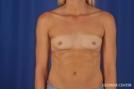 Breast Augmentation: Patient 168 - Before Image 1