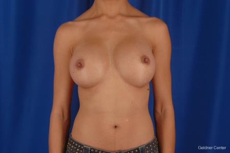 Chicago Breast Augmentation 2339 -  After Image 1