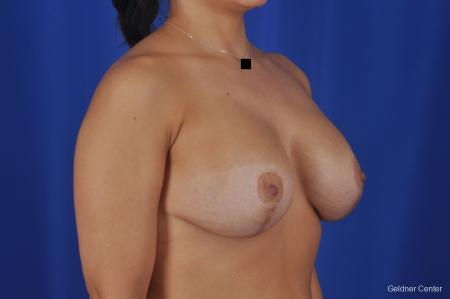 Chicago Breast Lift 2059 -  After Image 3