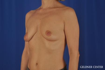 Breast Lift Lake Shore Dr, Chicago 6649 - Before and After Image 3