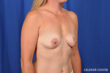 Breast Augmentation Hinsdale, Chicago 5580 - Before Image 2