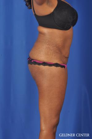 Abdominoplasty: Patient 6 - Before Image 3