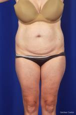 Liposuction: Patient 6 - Before Image