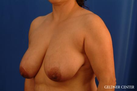 Breast Reduction Hinsdale, Chicago 2630 - Before and After Image 5