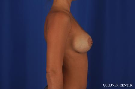 Breast Augmentation: Patient 109 - After Image 3