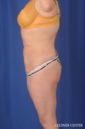 Liposuction: Patient 45 - After Image 4